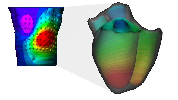Example of body surface potentials (left) and non invasive reconstruction of endocardial isopotential map (right).